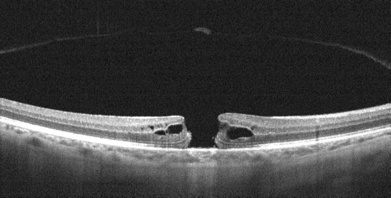 macular hole terrace eye centre